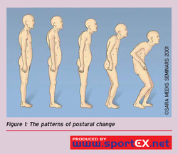 Correct posture with Spinal Touch Therapy, Calgary